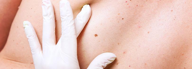 Hauttumor Vorsorgeuntersuchung
