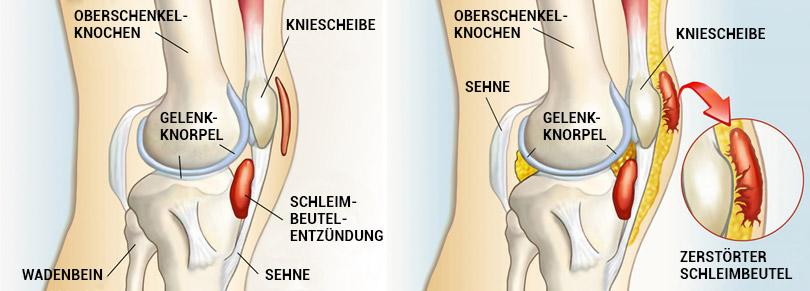 Grafische Darstellung einer Schleimbeutelentzündung (Bursitis)