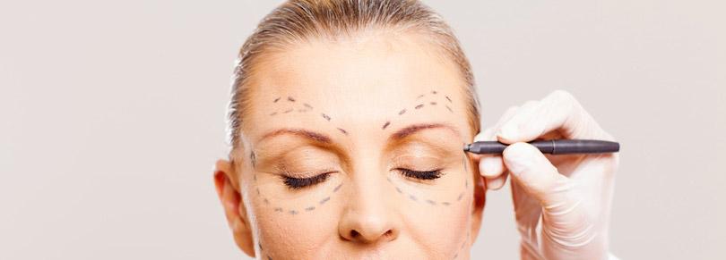 Augenbrauenhebung , Augenbrauenlift , Oberlidkorrektur , Oberlidstraffung , Unterlidstraffung , Tränensäcke entfernen OP , Schlupflider entfernen München